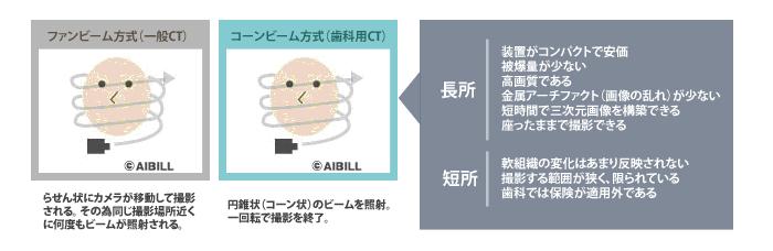 歯科用CT(コーンビーム方式)